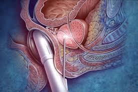 Biopsia de prostata transperineal tecnica