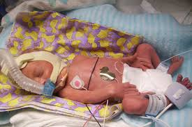down's syndrome baby,genetic disease  baby,blue baby,baby oxygen supply,baby neonatal icu,baby being born vaginally,baby burn,baby accident,baby icu,baby diapher skin rashes,baby diarea,children baby malneutrition,children baby skin disease, children waxination pateint on hospital bed,children waxination pateint,Pediatrics