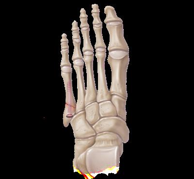 Técnica revestimiento fractura Jones