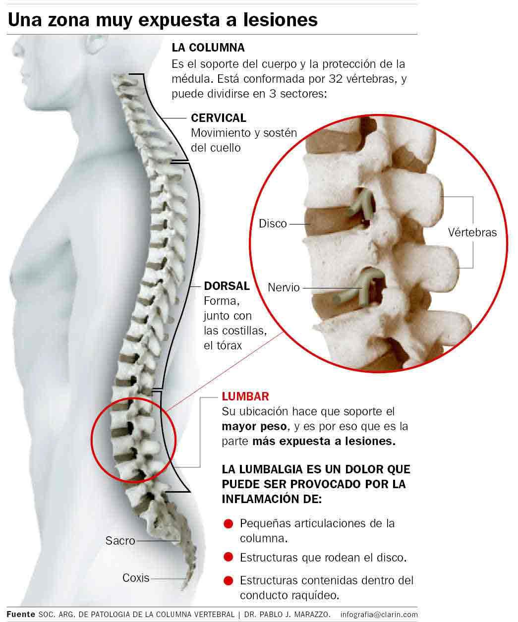 Calmar el dolor agudo a sheynyy la osteocondrosis