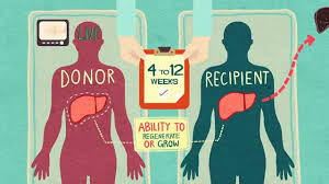 kidney donor in india