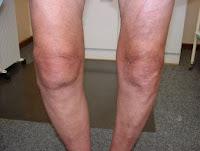 http://maulherbal.blogspot.co.id/2017/05/cara-mengatasi-lutut-kopong.html