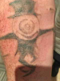 Tattoo shortly after picosure laser session showing swelling