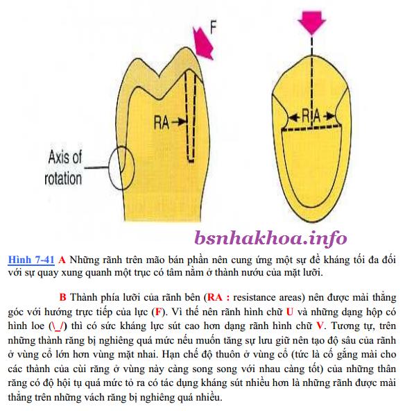 mão bán phần răng sứ