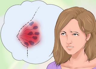 Obat herbal infeksi payudara