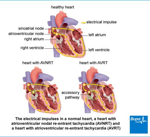 What Is Svt >> Tinta Hati Si Kidal Supraventricular Tachycardia