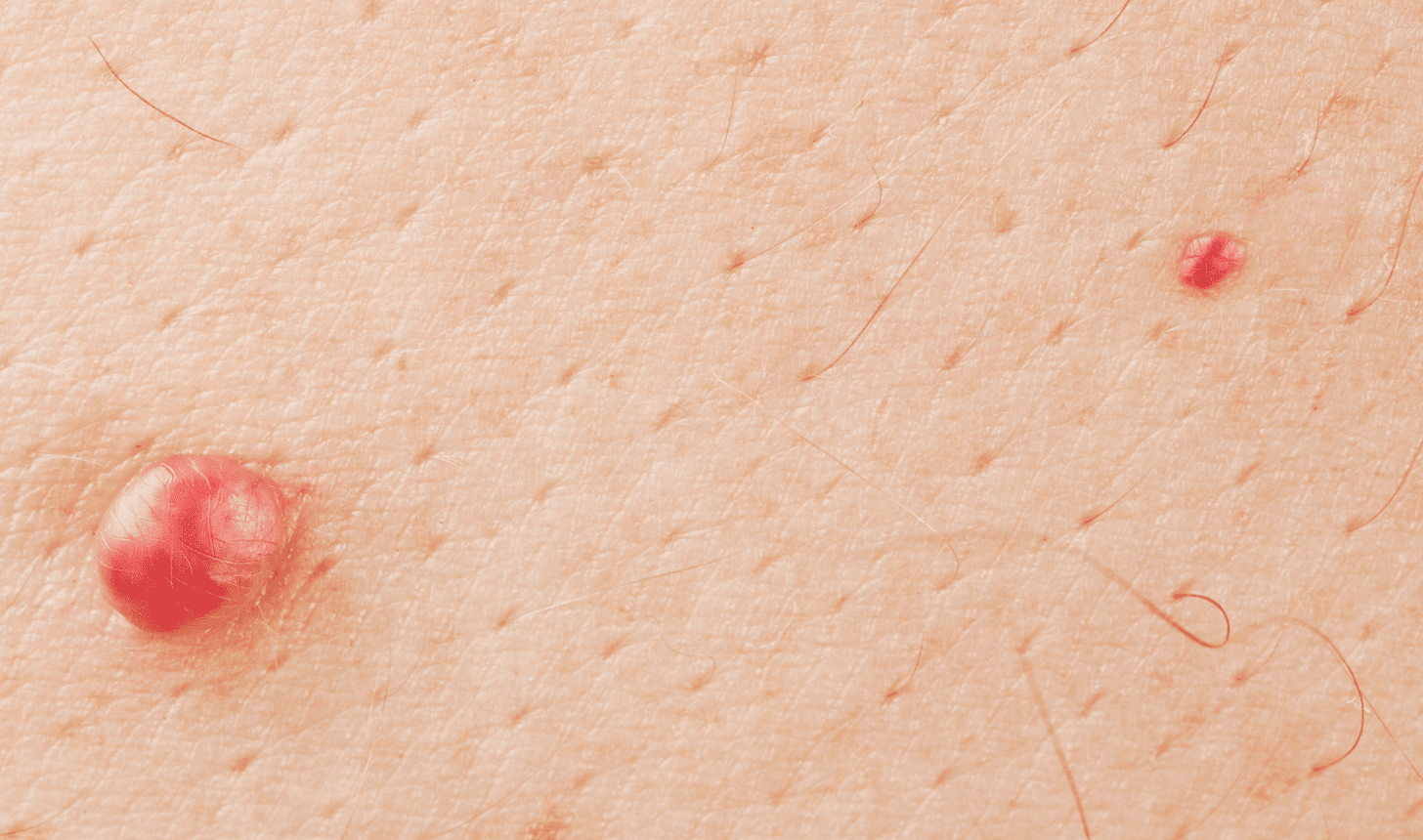 Notice These Possible Cancer Signs Before It's Too Late