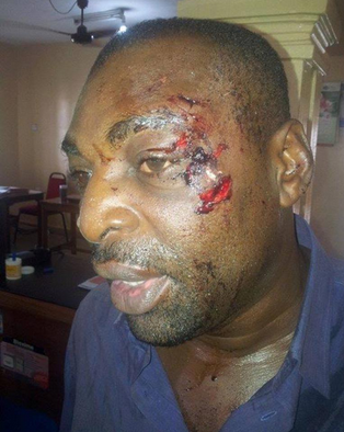 pdp thugs attack apc campaign manager