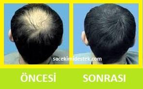 saç mezoterapisi öncesi ve sonrası 23