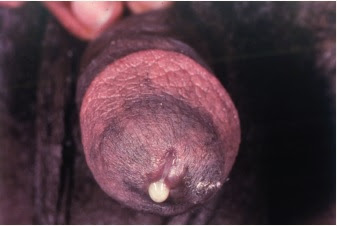 Copious purulent urethral exudate in gonorrhea