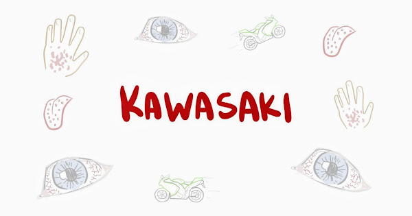 Хвороба Кавасакі