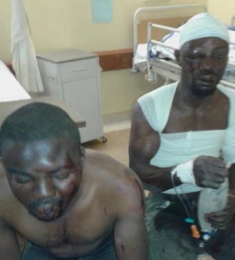 2 nigerians beaten to stupor south africans kuruman