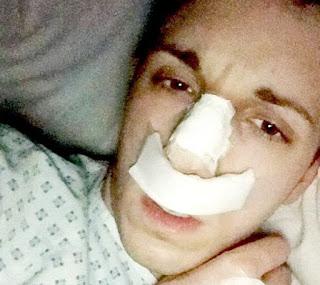 Nose Surgery.