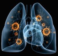 Cara Alami Mengobati Pneumonia