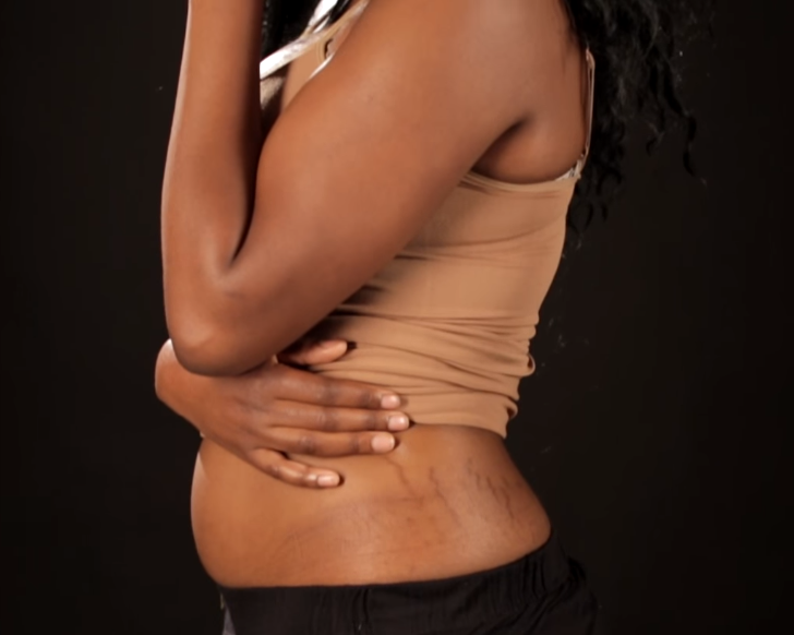Is there really cure/treatment for stretch marks? Find out!