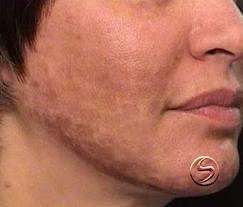 consejos para aclarar la piel de la cara