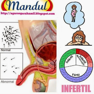 Perbedaan Arti Kata Mandul Dan Infertil