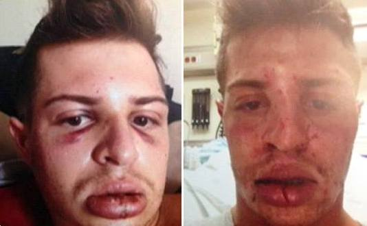 Gay Man Kisses His Boyfriend In Front Of A Homophobe & Gets Badly Beaten (photos)