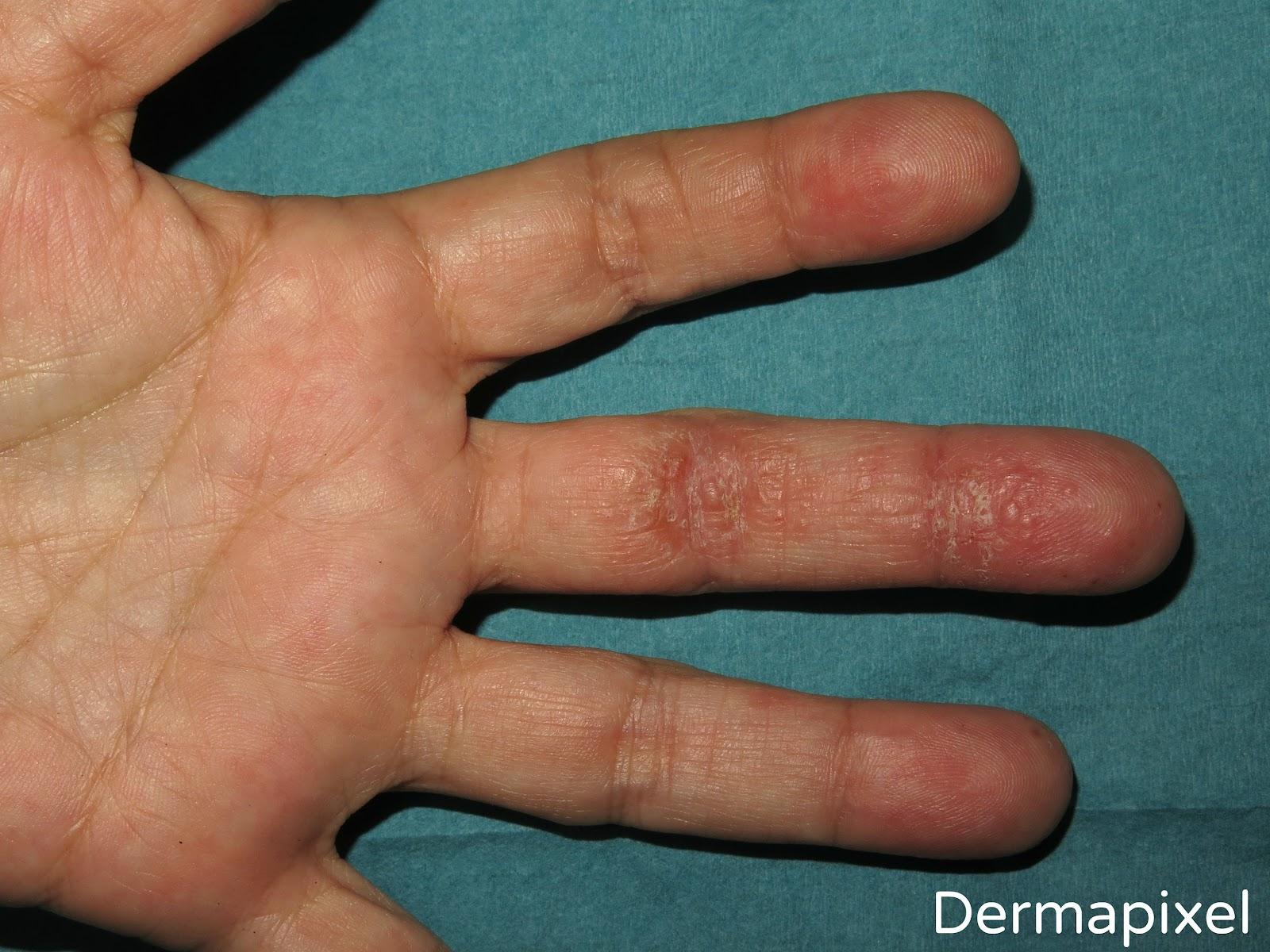 El ungüento de la psoriasis en la mano
