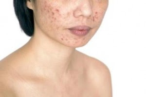 Tips To Get Rid Of Dry Skin Pimples