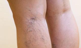 Titik refleksi untuk mengatasi gangguan pembuluh darah vena