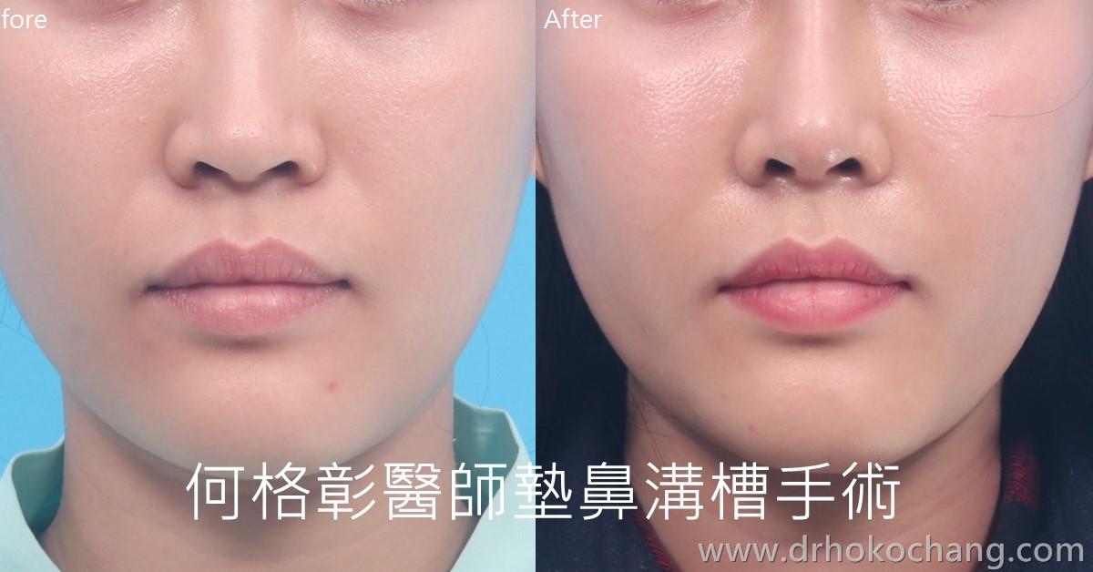 台中墊鼻溝槽法令紋手術 複合式墊鼻溝槽手術打擊深深法令紋-paranasal04