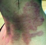 Obat Herbal Alami Gatal Eksim Kering di Leher Yang Menahun