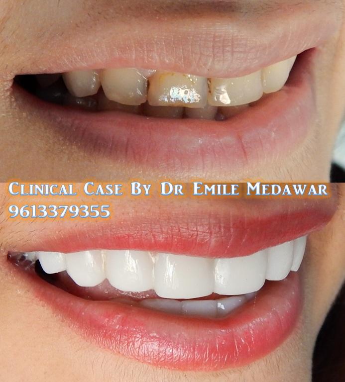 Wedding Smile Beirut, Dr Emile Medawar, 00 961 3 379355