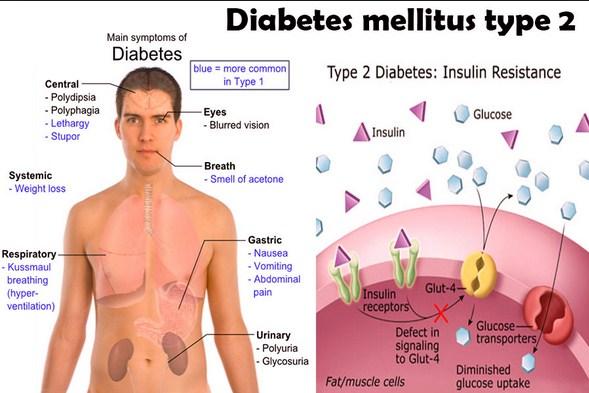 Bekatul Beras Merah Dapat Juga Mencegah Diabetes Tipe 2