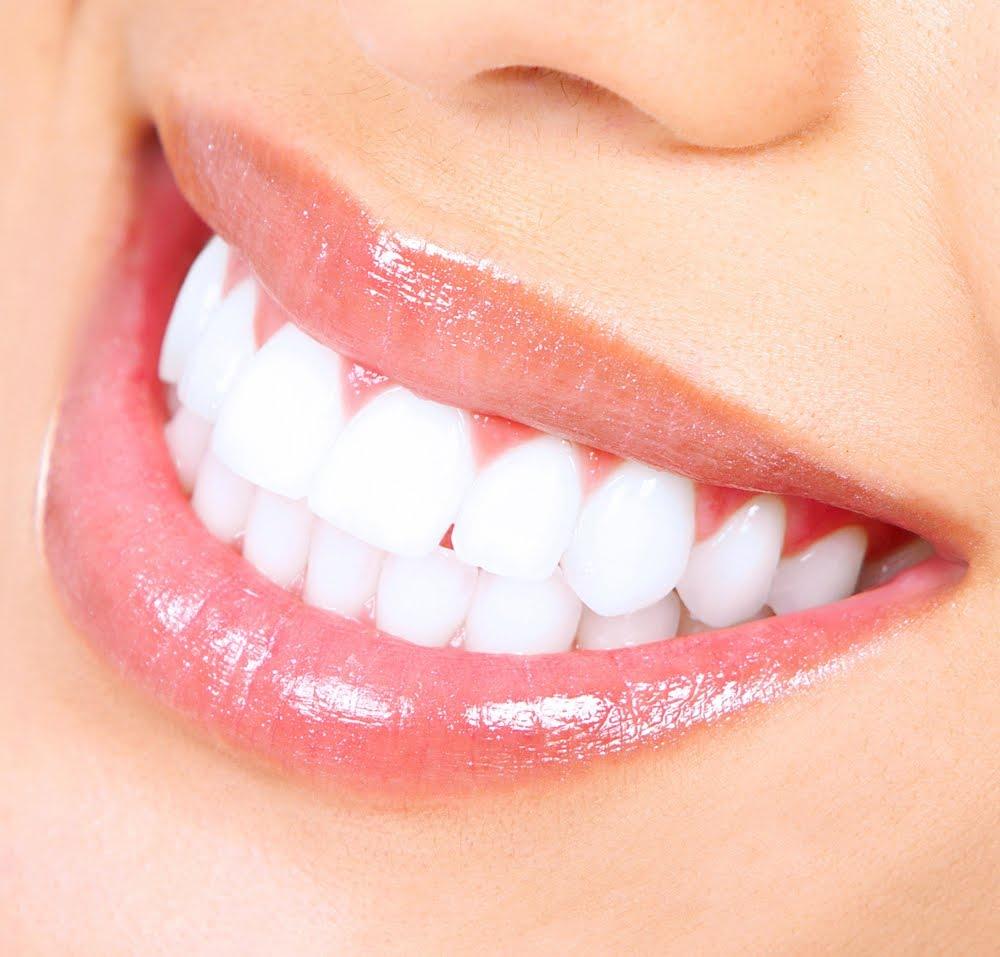 15 Cara Memutihkan Gigi Kuning Secara Alami Dan Cepat Sunan