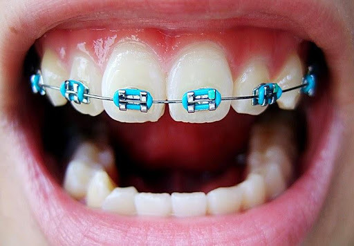 FAMILY CARE DENTAL Fake braces and its consequences