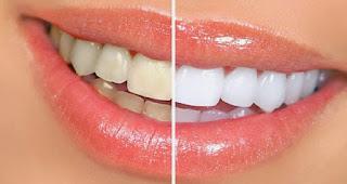 Tips Memutihkan Gigi Kuning Secara Cepat dan Alami