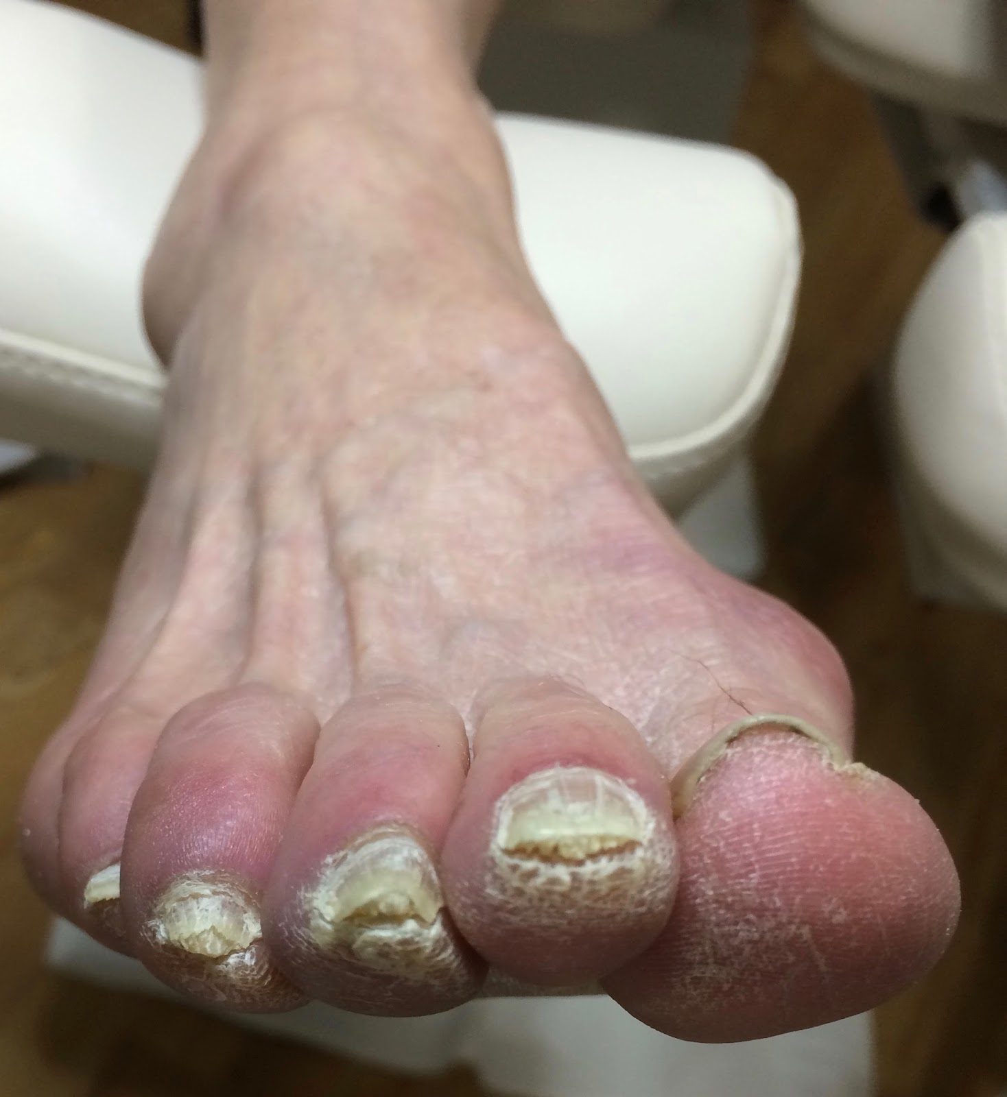 Possible fungus or possible subungual corns. | Lucie\'s Foot Care