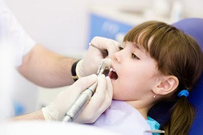 Giá nhổ răng sữa cho trẻ bao nhiêu tiền ?