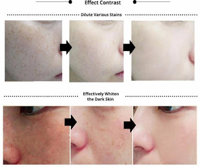 BEST FACE SMOOTHENER & MOISTURIZER: ANTI AGING, WRINKLE AND ACNE REMOVER SERUM