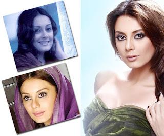 Minissha Lamba Plastic Surgery