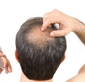5 Cara Mengatasi Rambut Rontok Secara Alami