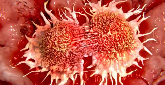 طبيب يُفجر مفاجأة: عالجوا السرطان بالماء وهذا المكوّن!