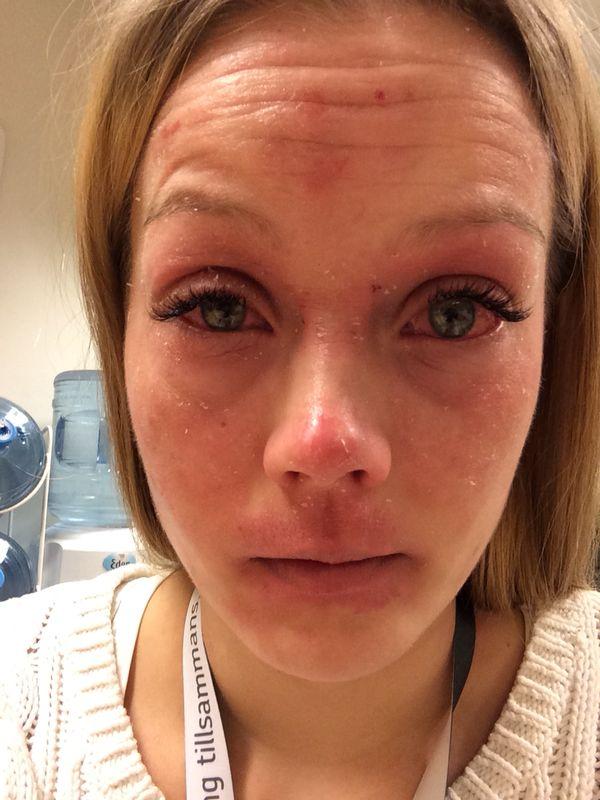Turvonnut Silmäluomi Allergia