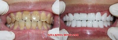 bọc răng sứ có nguy hiểm không -7