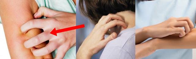obat gatal kulit obat gatal pada selangkangan obat gatal tradisional