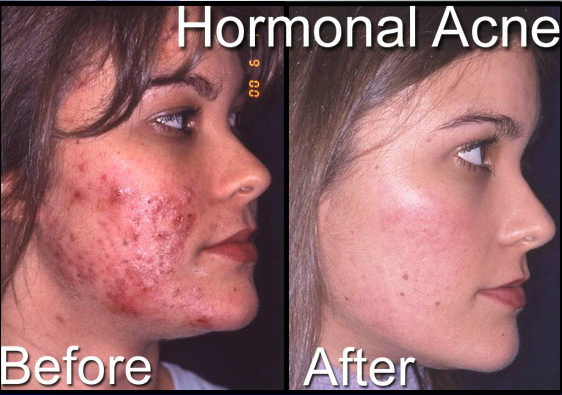 Free For Health Severe Cystic Acne