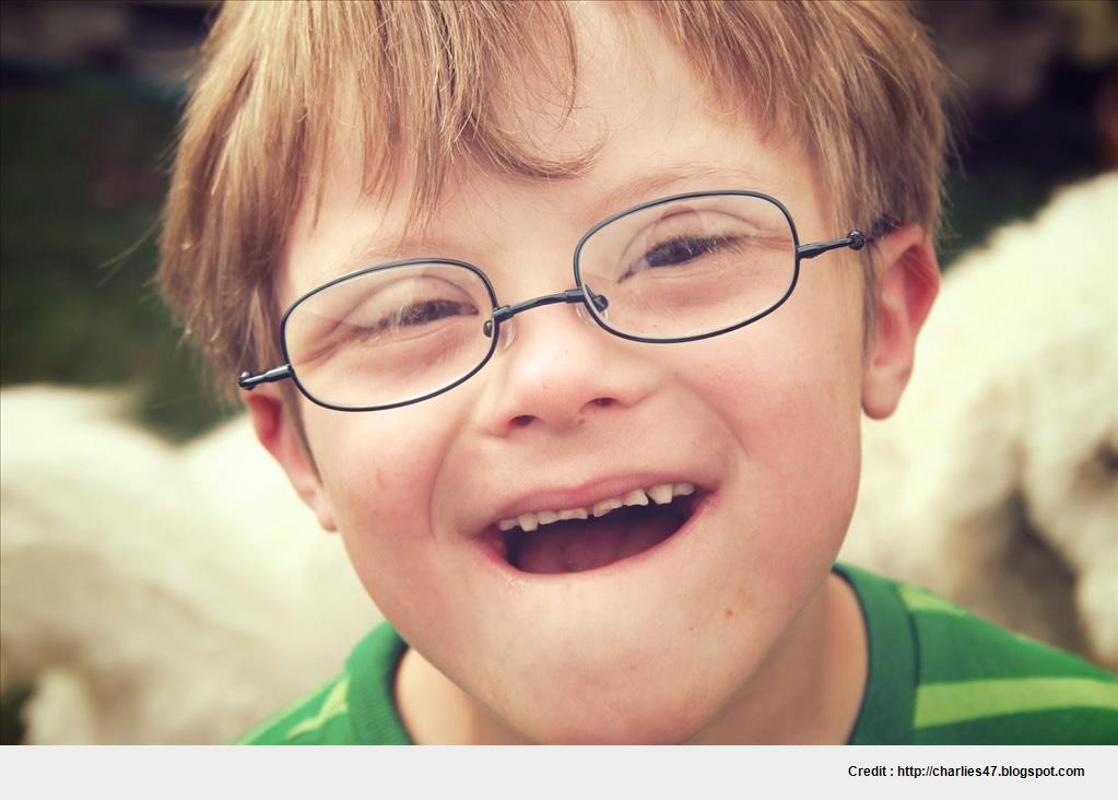 Best glasses frames for down syndrome wallpaper