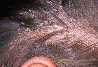 GATAL Jamur dikepala yang dapat menyebabkaN kulit kepala berkerak dan mengelupas
