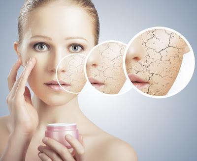 O inverno pode agravar diversas doenças dermatológicas