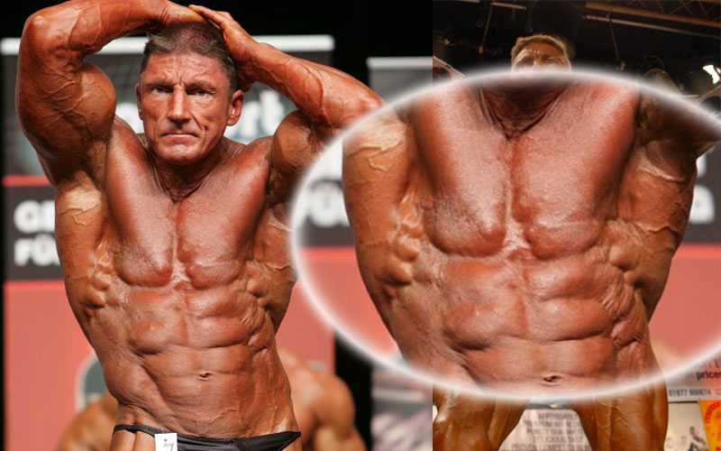 an introduction to steroids and the use of steroids by athletes Frequently, the anabolic steroids that athletes use are synthetic modifications of testosterone these hormones have approved medical uses, though improving athletic performance is not one of them they can be taken as pills, injections or topical treatments.