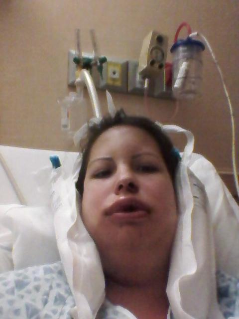 My Orthognathic Surgery