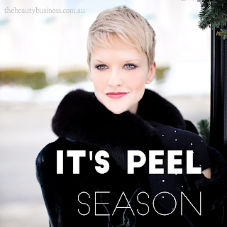 It's peel season!