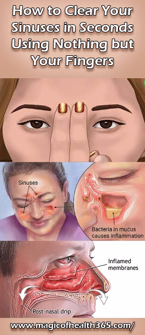 Natural Ways To Clear Your Sinuses