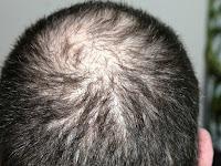 6 Rekomendasi Vitamin Terbaik Untuk Mengatasi Rambut Rontok